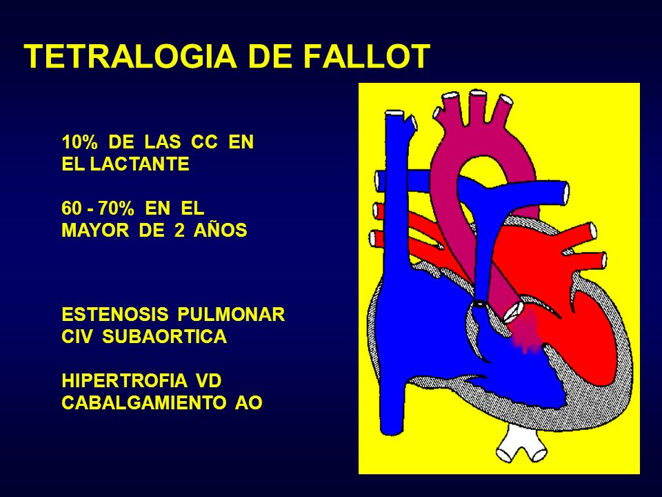 TETRALOGIA DE FALLOT 10% DE LAS CC EN EL LACTANTE 60 - 70% EN EL