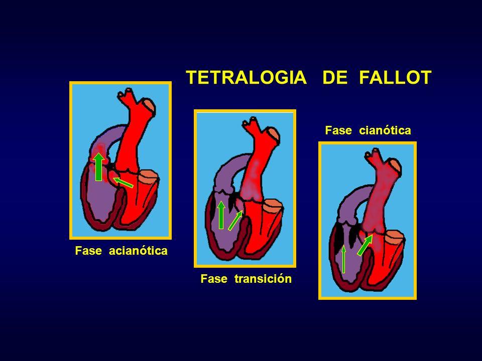 TETRALOGIA DE FALLOT Fase cianótica Fase acianótica Fase transición