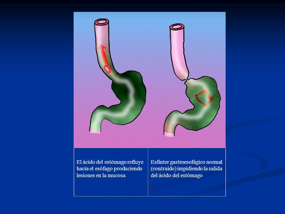 El ácido del estómago refluye hacia el esófago produciendo lesiones en la mucosa