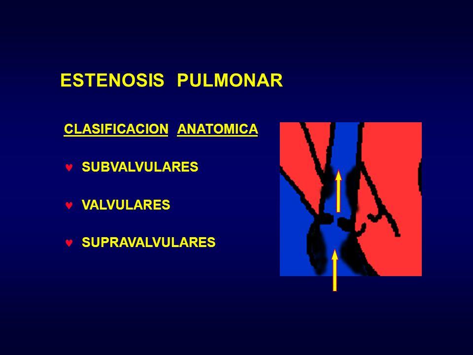ESTENOSIS PULMONAR CLASIFICACION ANATOMICA SUBVALVULARES VALVULARES