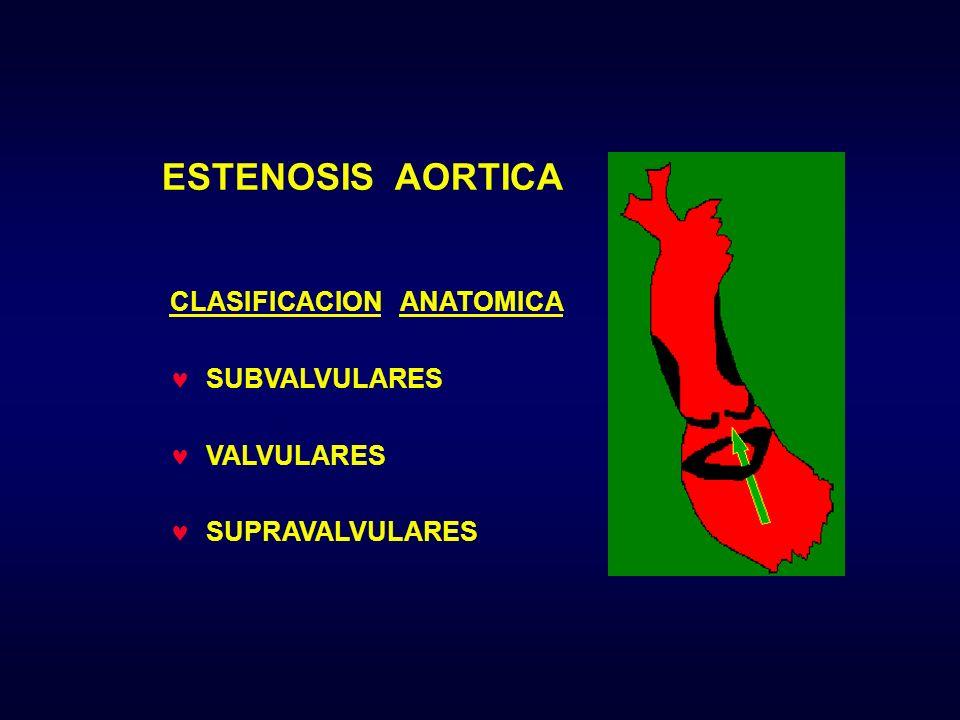 ESTENOSIS AORTICA CLASIFICACION ANATOMICA SUBVALVULARES VALVULARES