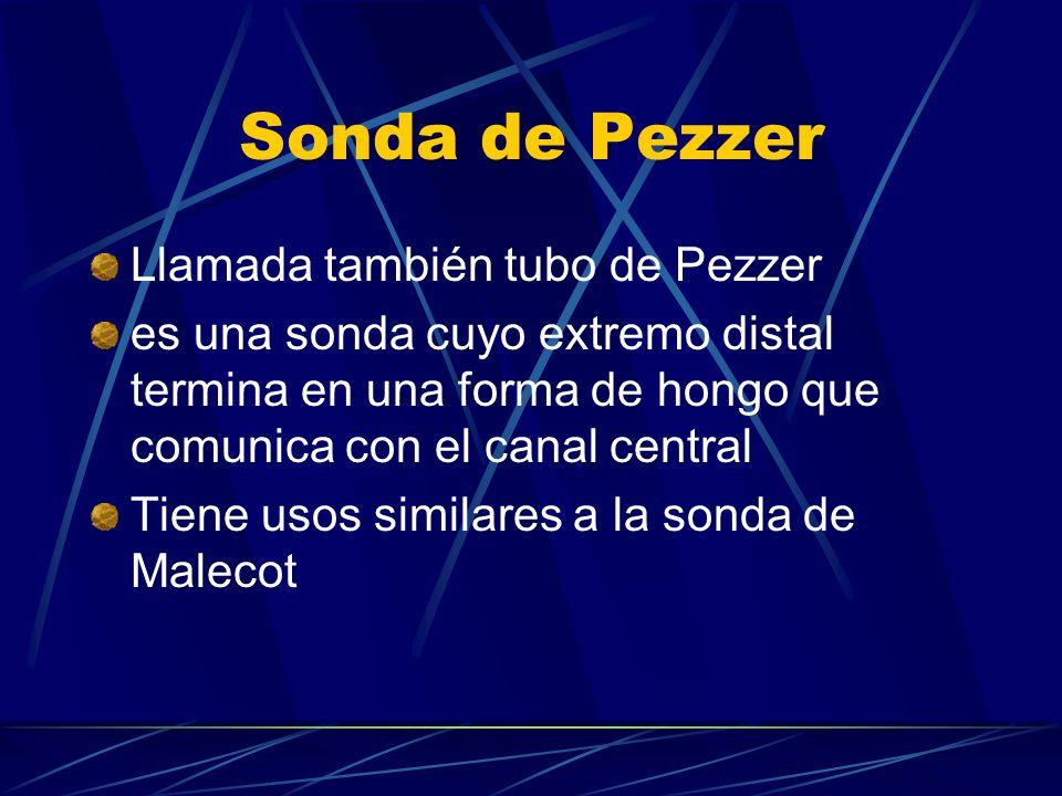 Sonda de Pezzer Llamada también tubo de Pezzer