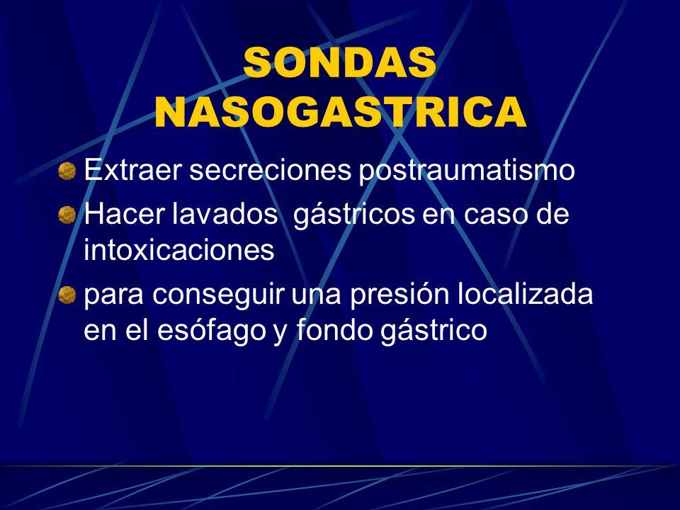 SONDAS NASOGASTRICA Extraer secreciones postraumatismo