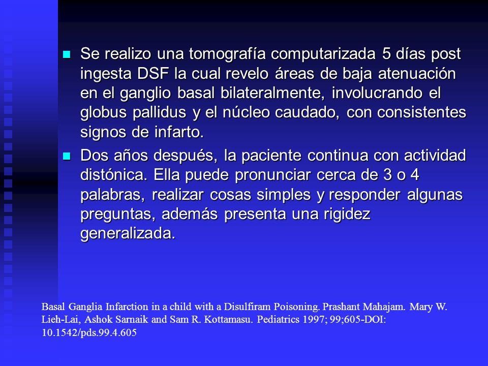 Se realizo una tomografía computarizada 5 días post ingesta DSF la cual revelo áreas de baja atenuación en el ganglio basal bilateralmente, involucrando el globus pallidus y el núcleo caudado, con consistentes signos de infarto.
