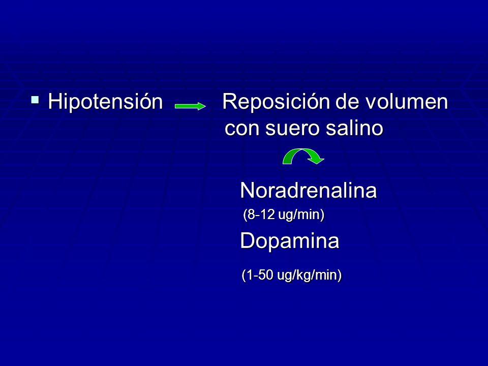 Hipotensión Reposición de volumen con suero salino