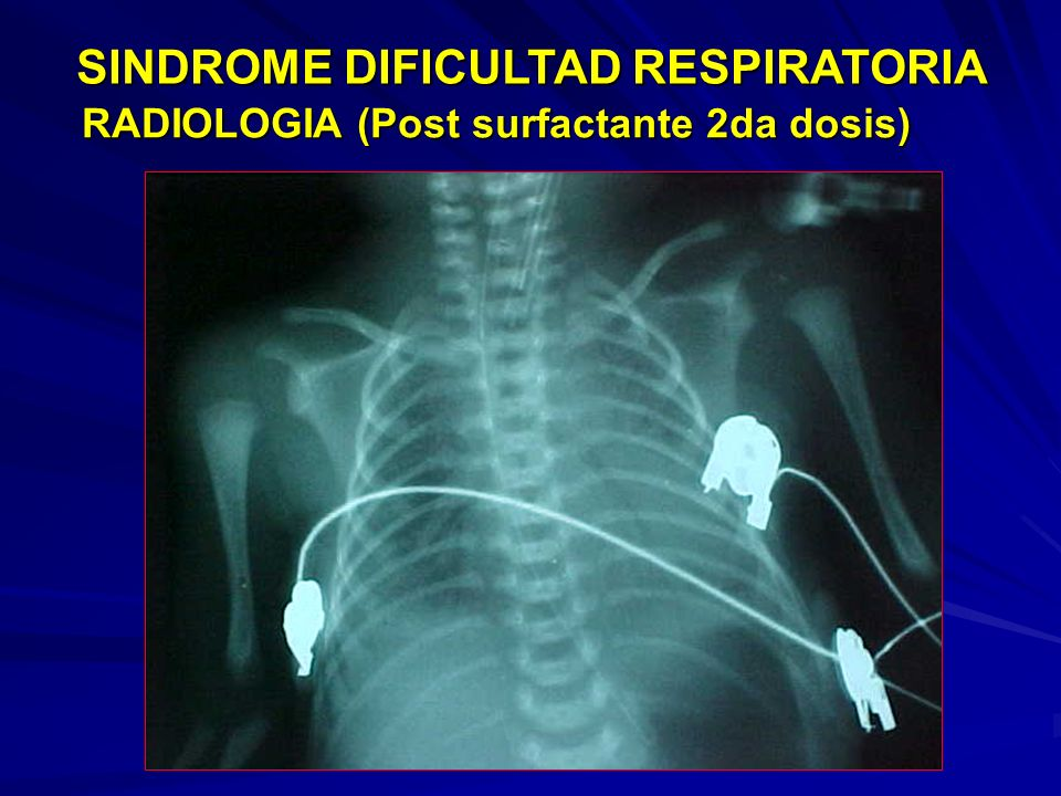 RADIOLOGIA (Post surfactante 2da dosis)