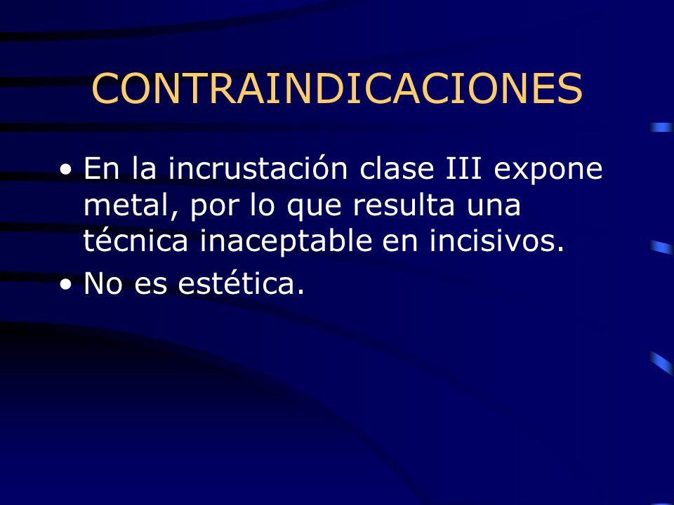 CONTRAINDICACIONES En la incrustación clase III expone metal, por lo que resulta una técnica inaceptable en incisivos.