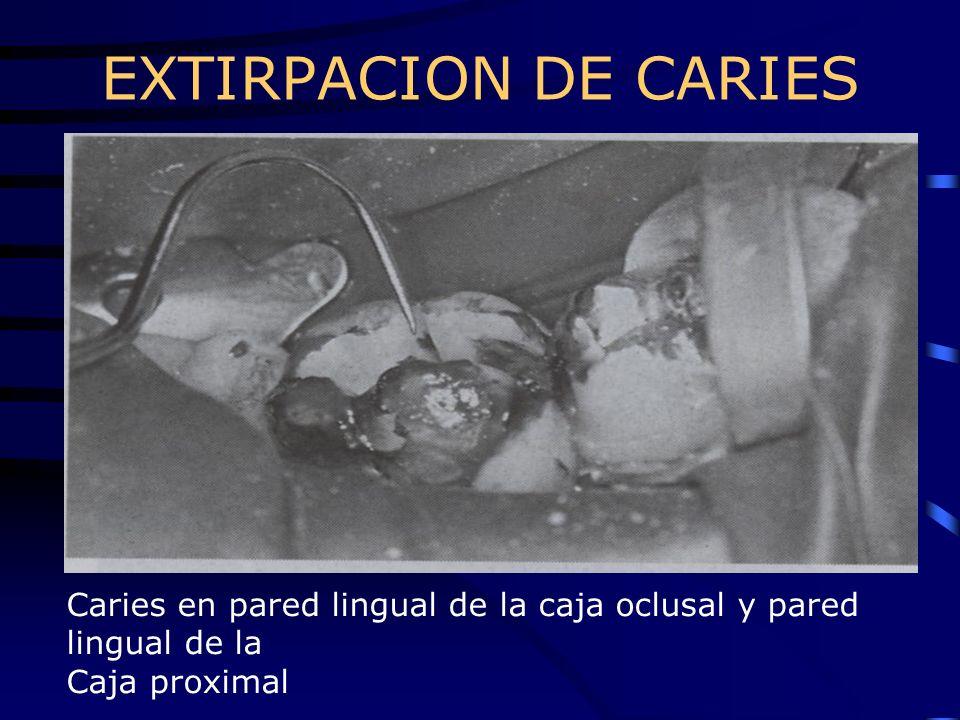 EXTIRPACION DE CARIES Caries en pared lingual de la caja oclusal y pared lingual de la.