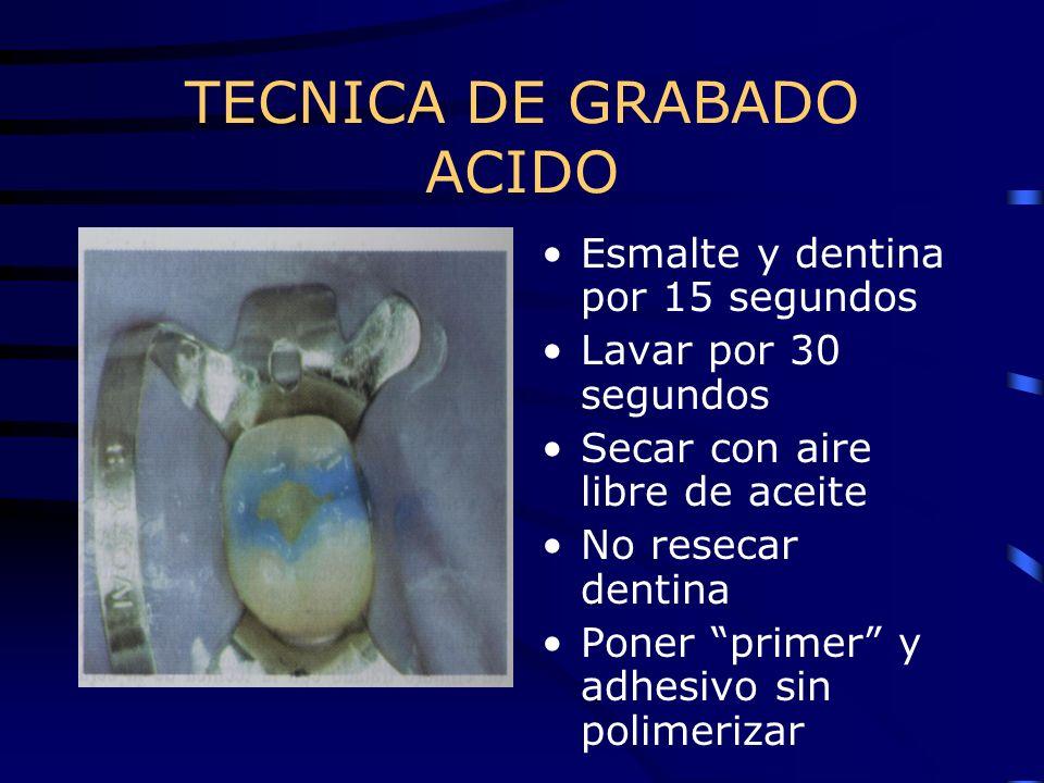 TECNICA DE GRABADO ACIDO