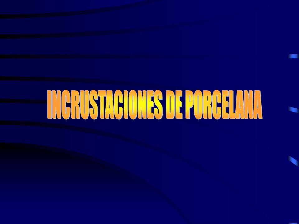 INCRUSTACIONES DE PORCELANA