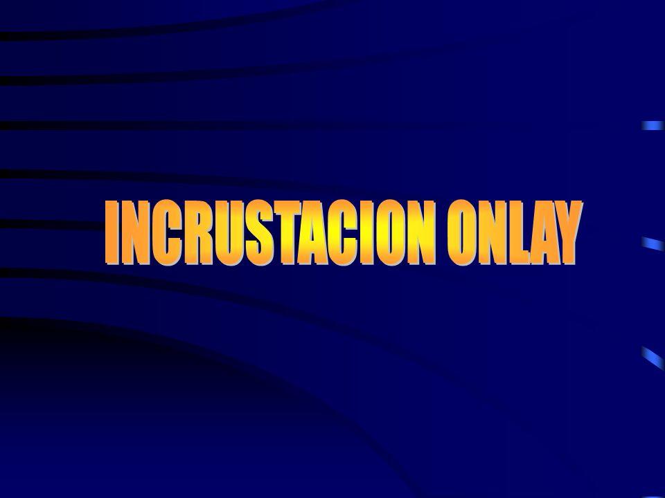 INCRUSTACION ONLAY