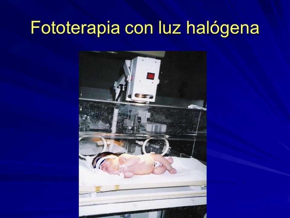 Fototerapia con luz halógena