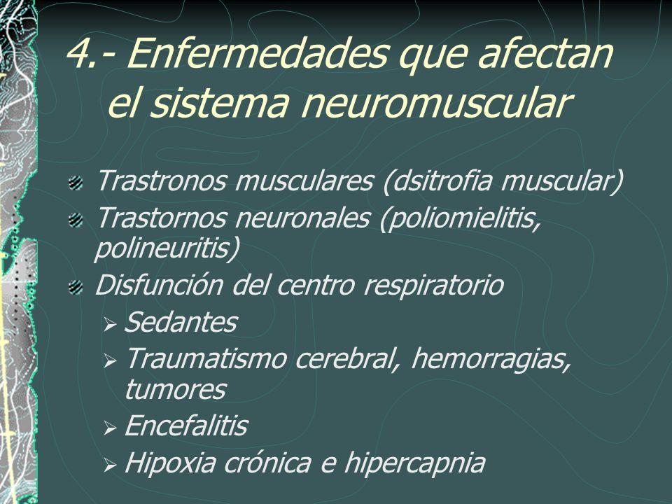 4.- Enfermedades que afectan el sistema neuromuscular
