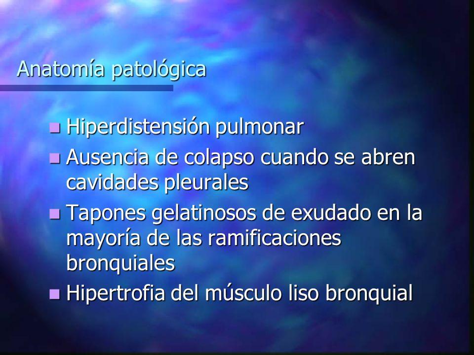 Anatomía patológica Hiperdistensión pulmonar. Ausencia de colapso cuando se abren cavidades pleurales.