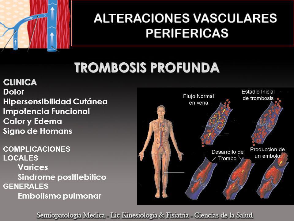 TROMBOSIS PROFUNDA CLINICA Dolor Hipersensibilidad Cutánea