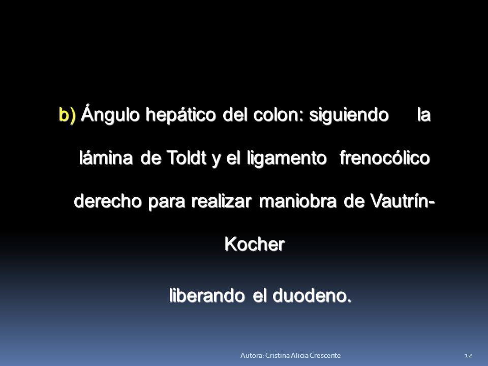b) Ángulo hepático del colon: siguiendo la lámina de Toldt y el ligamento frenocólico derecho para realizar maniobra de Vautrín-Kocher