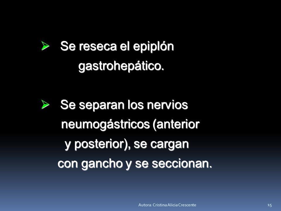 neumogástricos (anterior y posterior), se cargan