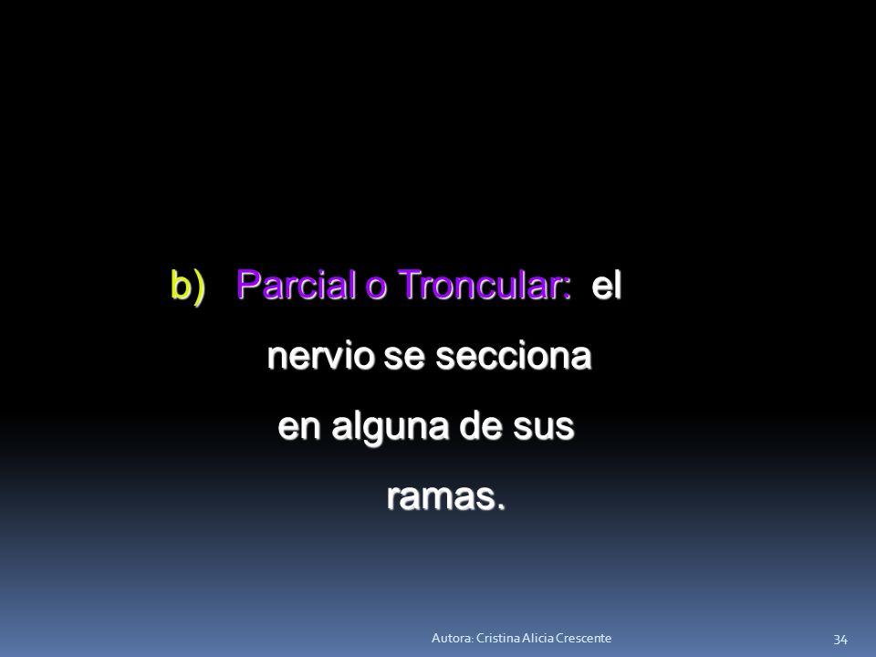 Parcial o Troncular: el nervio se secciona en alguna de sus ramas.