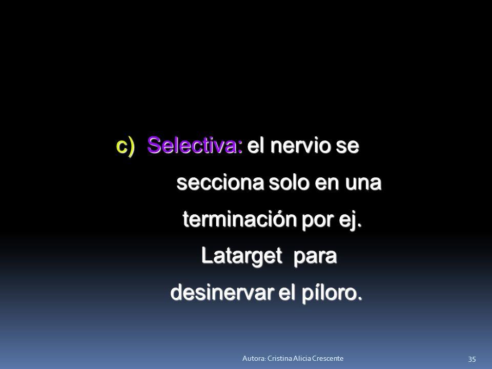 Selectiva: el nervio se secciona solo en una terminación por ej.