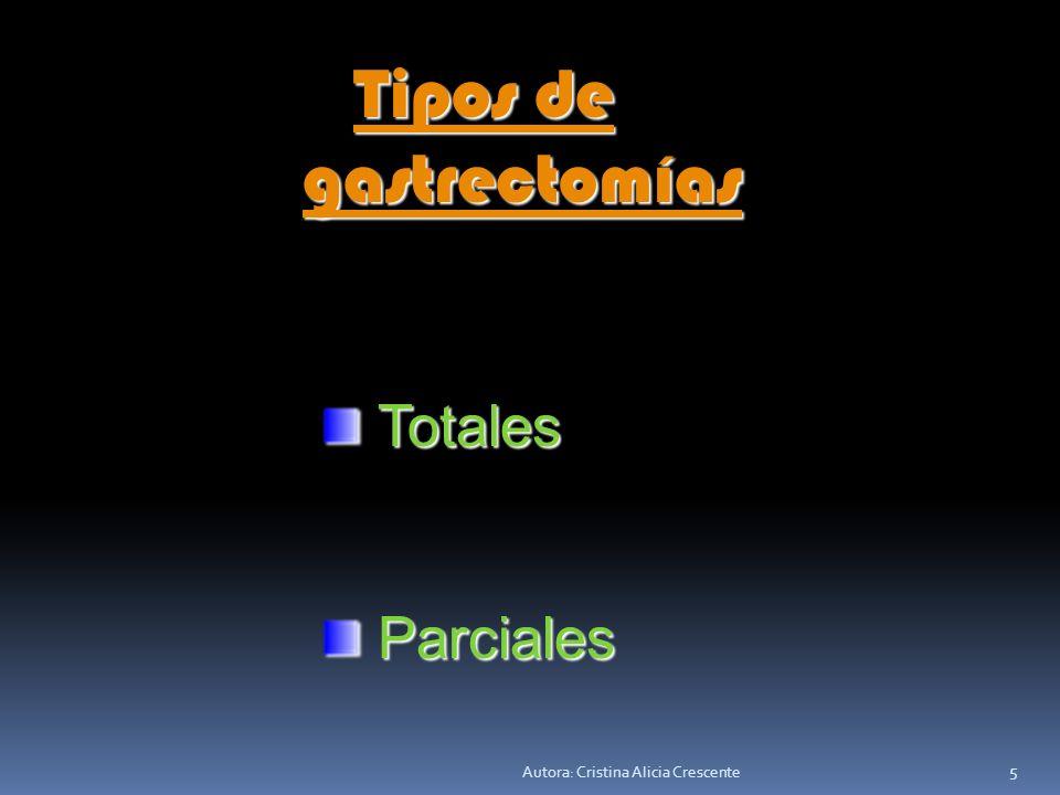 gastrectomías Tipos de Totales Parciales