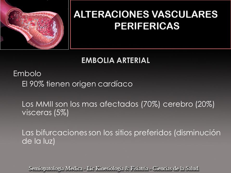 EMBOLIA ARTERIALEmbolo. El 90% tienen origen cardíaco. Los MMII son los mas afectados (70%) cerebro (20%) visceras (5%)