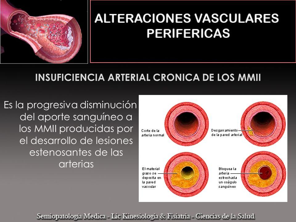INSUFICIENCIA ARTERIAL CRONICA DE LOS MMII