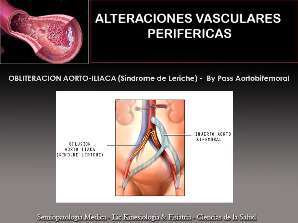 OBLITERACION AORTO-ILIACA (Síndrome de Leriche) - By Pass Aortobifemoral