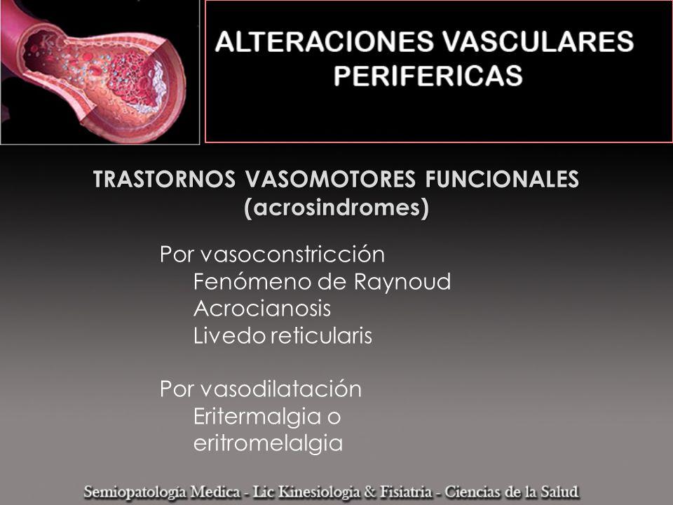 TRASTORNOS VASOMOTORES FUNCIONALES (acrosindromes)