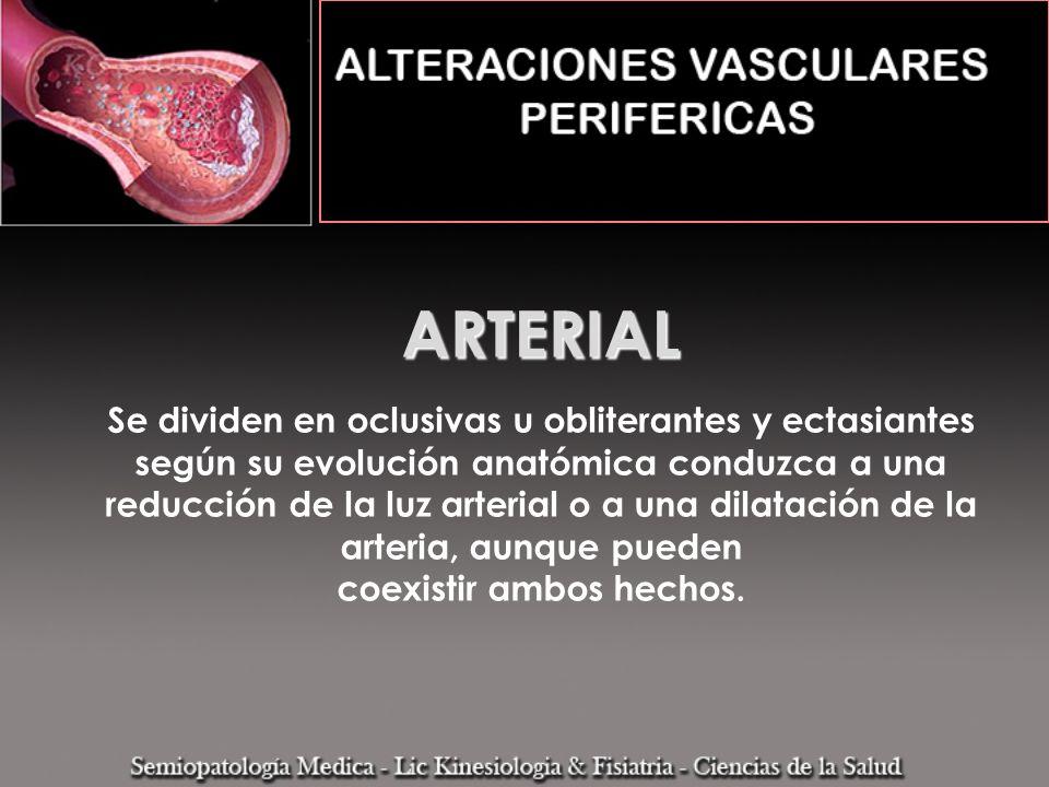 ARTERIAL Se dividen en oclusivas u obliterantes y ectasiantes según su evolución anatómica conduzca a una reducción de la luz arterial o a una dilatación de la arteria, aunque pueden coexistir ambos hechos.