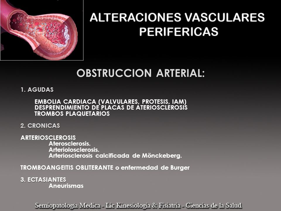 OBSTRUCCION ARTERIAL: