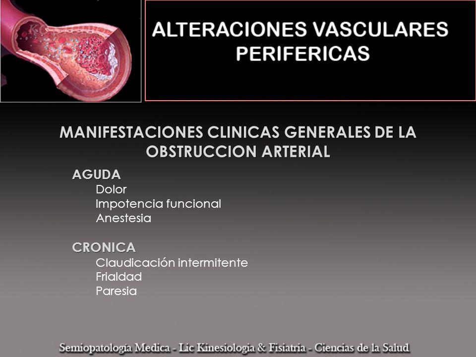 MANIFESTACIONES CLINICAS GENERALES DE LA OBSTRUCCION ARTERIAL