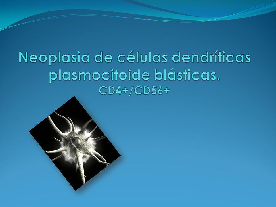 Neoplasia de células dendríticas plasmocitoide blásticas. CD4+/CD56+