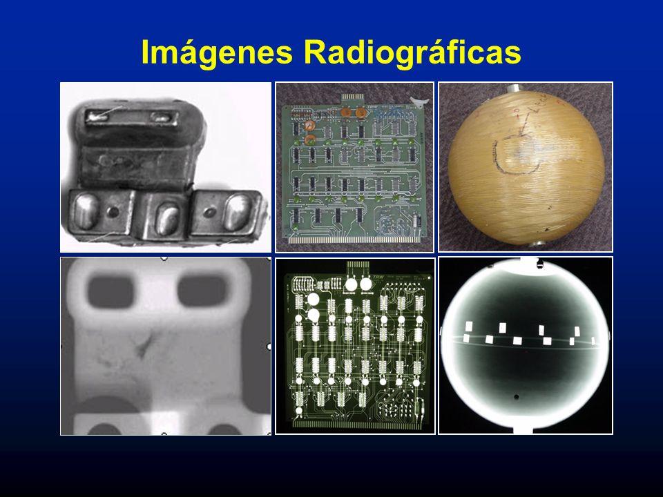 Imágenes Radiográficas