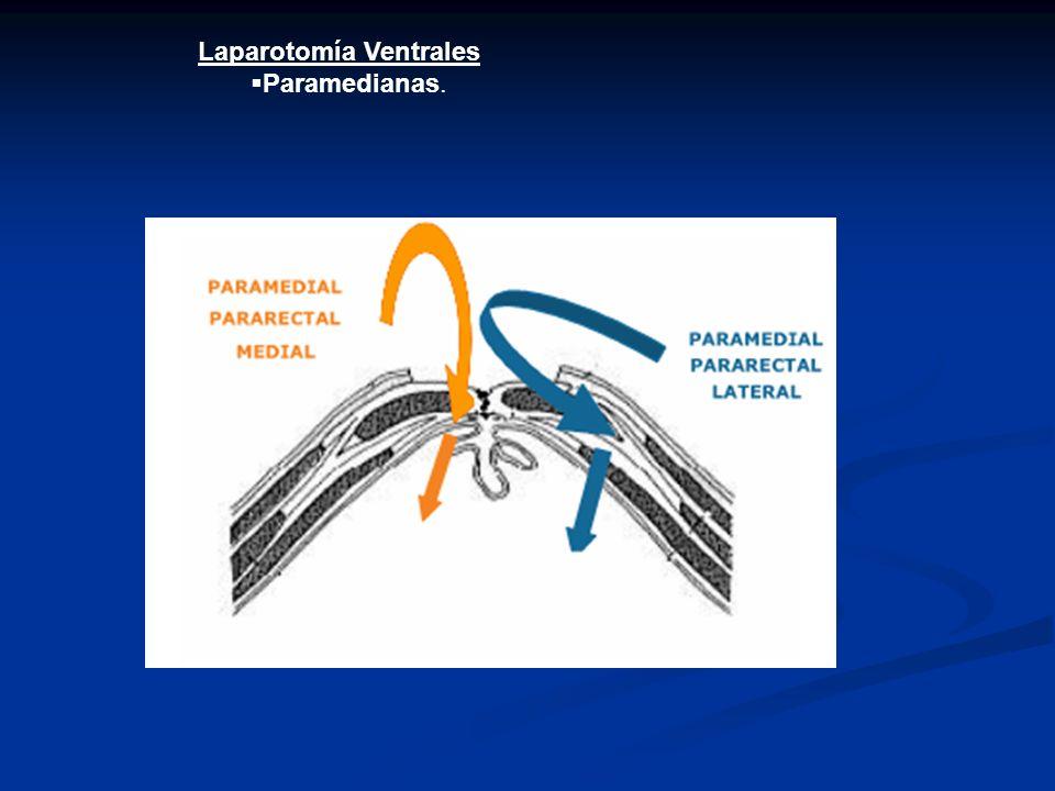 Laparotomía Ventrales