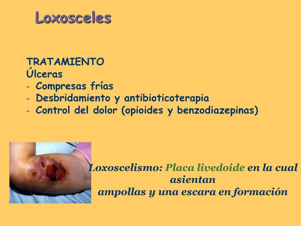 Loxosceles TRATAMIENTO Úlceras Compresas frías