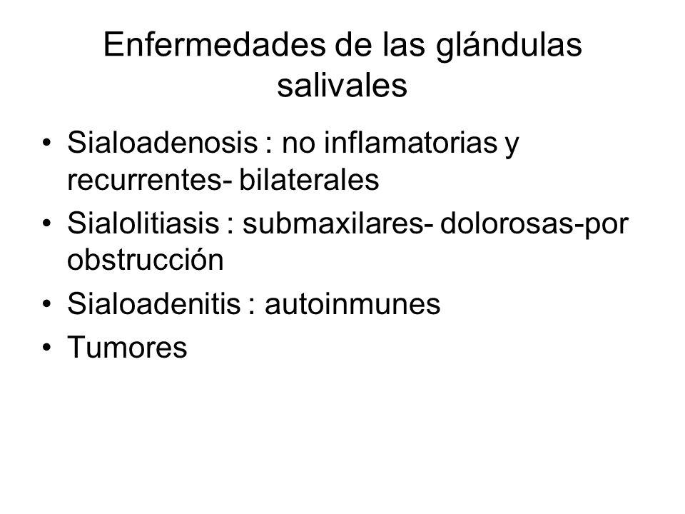 Enfermedades de las glándulas salivales