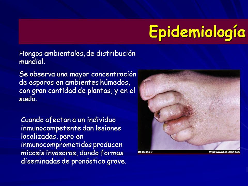 Epidemiología Hongos ambientales, de distribución mundial.
