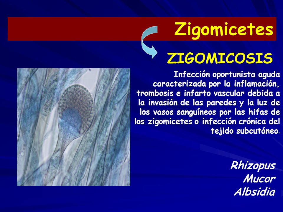 Zigomicetes ZIGOMICOSIS Rhizopus Mucor Albsidia