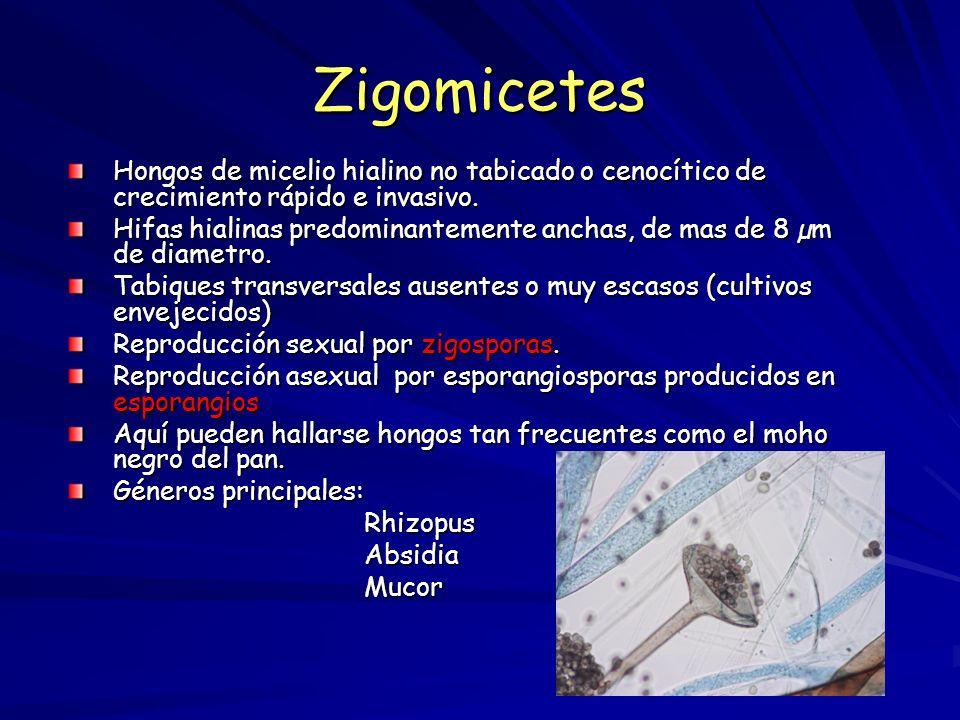 Zigomicetes Hongos de micelio hialino no tabicado o cenocítico de crecimiento rápido e invasivo.