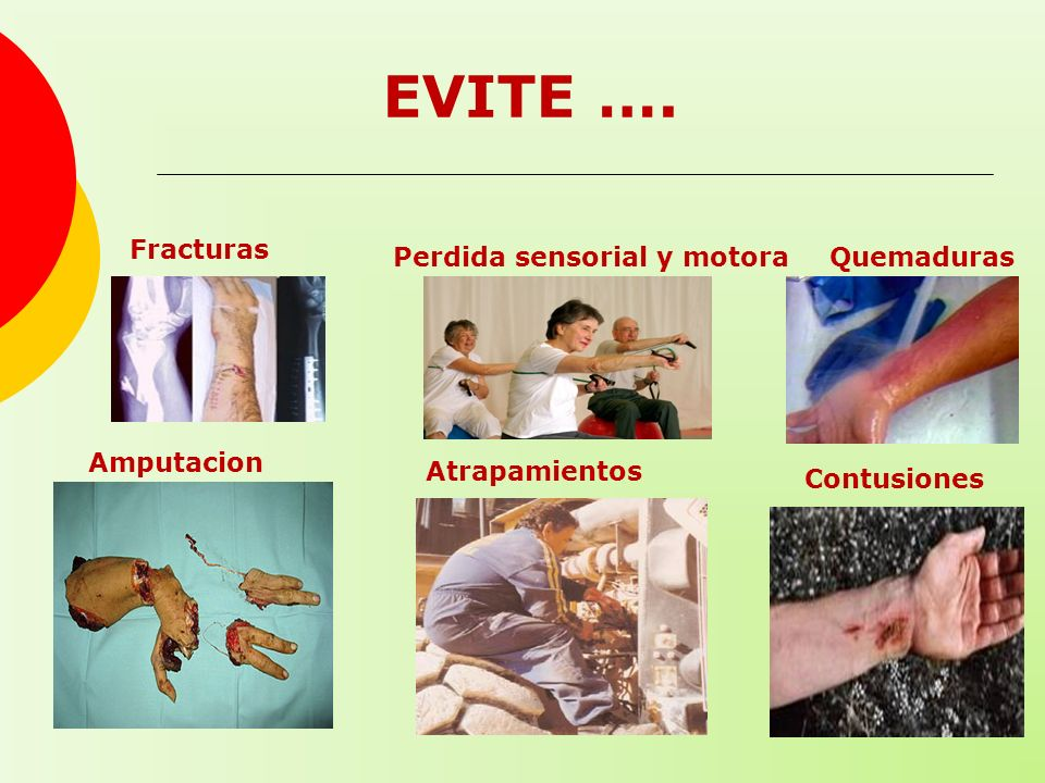 EVITE …. Fracturas Perdida sensorial y motora Quemaduras Amputaciones