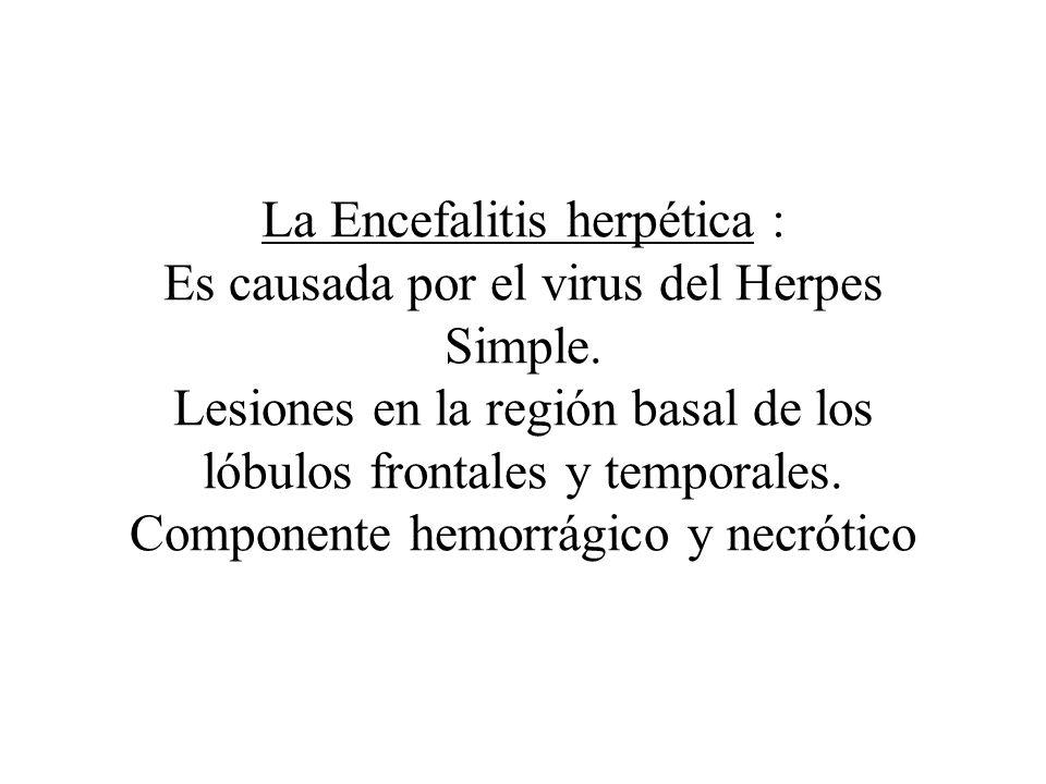 La Encefalitis herpética : Es causada por el virus del Herpes Simple