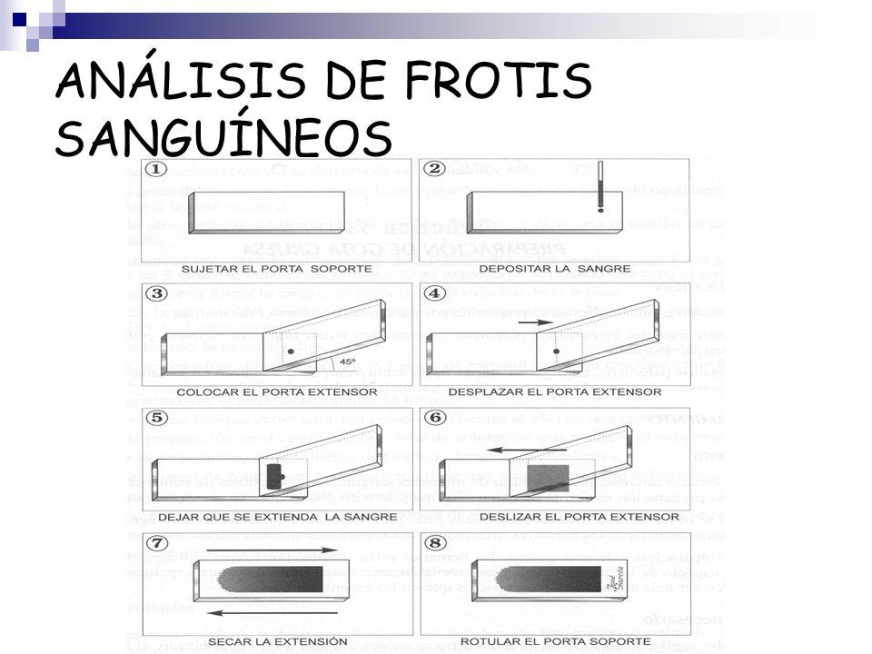 ANÁLISIS DE FROTIS SANGUÍNEOS