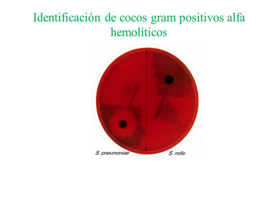 Identificación de cocos gram positivos alfa hemolíticos