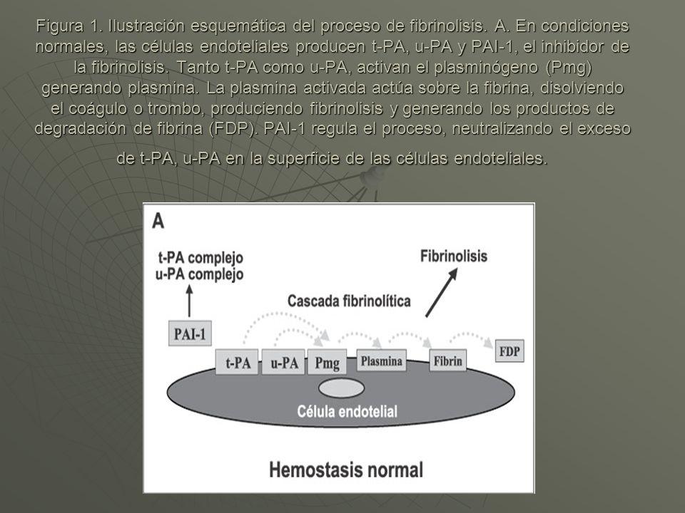 Figura 1. Ilustración esquemática del proceso de fibrinolisis. A