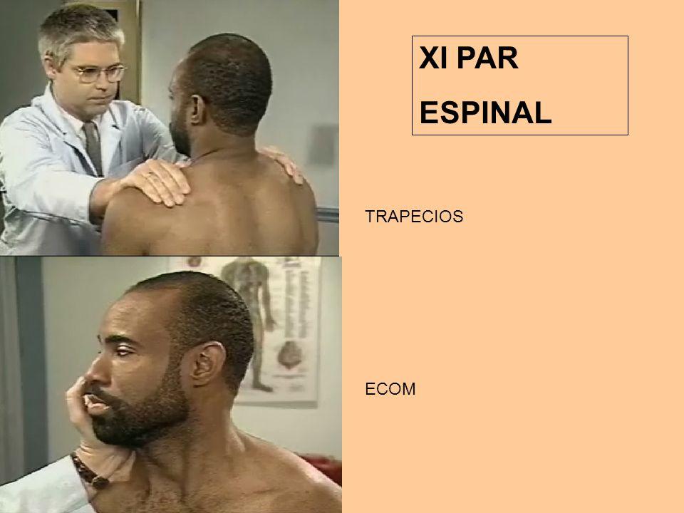 XI PAR ESPINAL TRAPECIOS ECOM