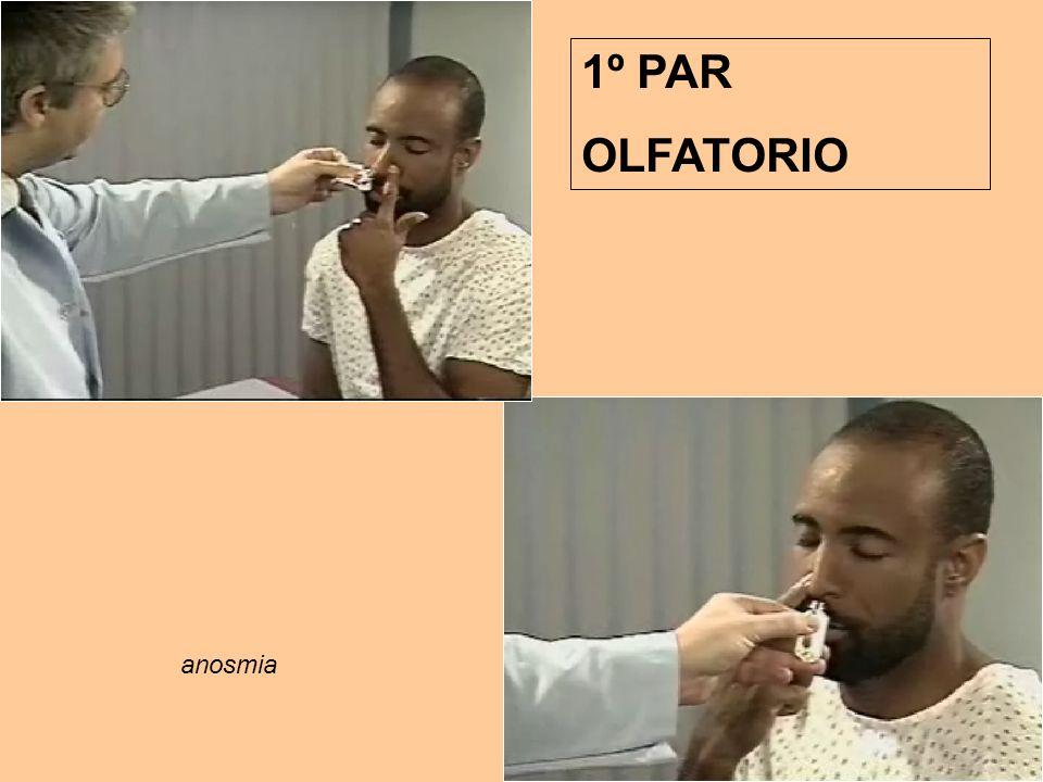 1º PAR OLFATORIO anosmia