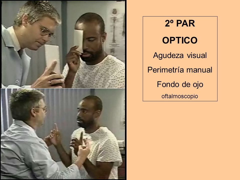 2º PAR OPTICO Agudeza visual Perimetría manual Fondo de ojo