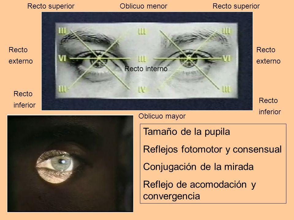 Reflejos fotomotor y consensual Conjugación de la mirada