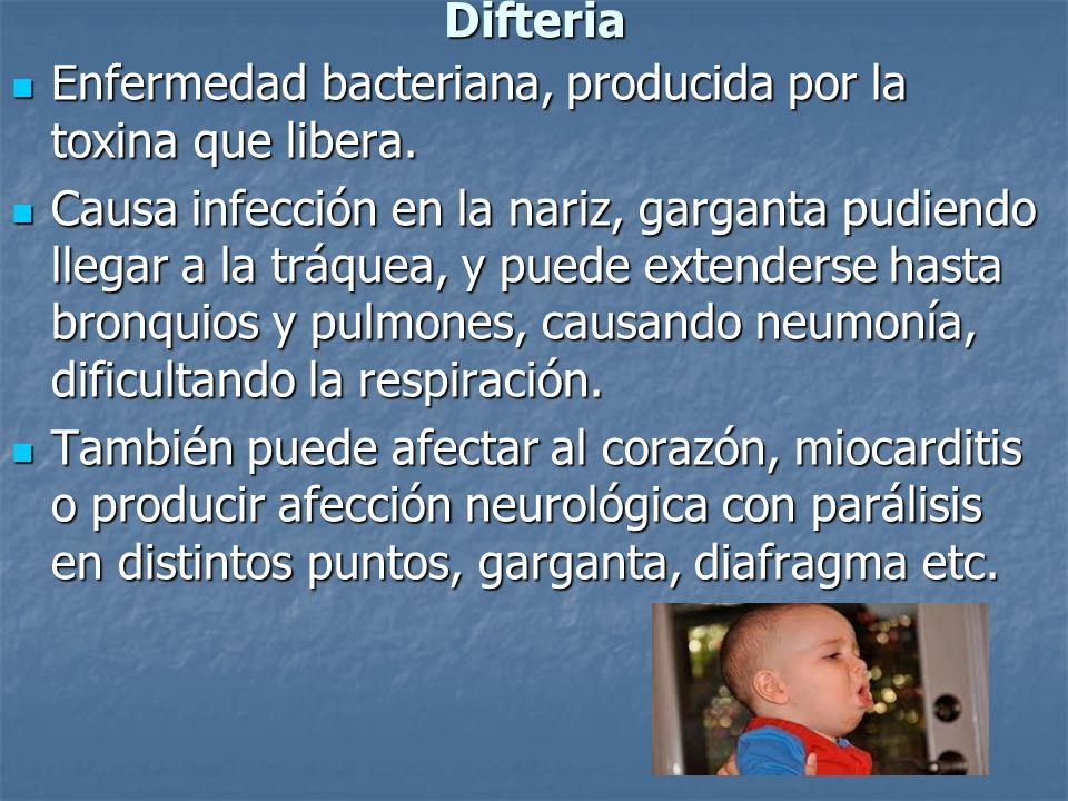 DifteriaEnfermedad bacteriana, producida por la toxina que libera.