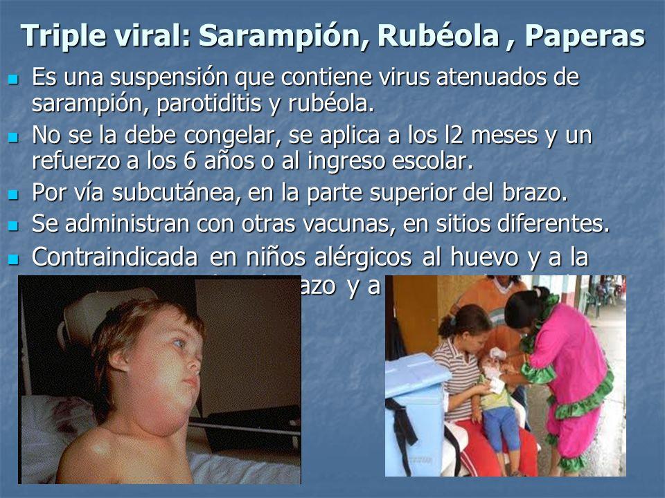 Triple viral: Sarampión, Rubéola , Paperas